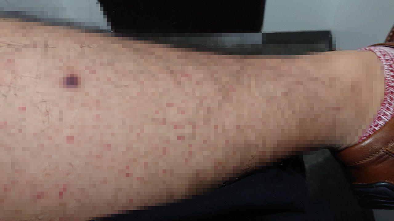足の血管炎